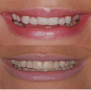 Vancouver Island Smile Makeover