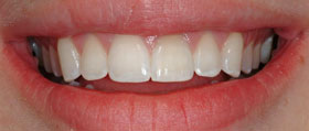 Vancouver Island Teeth Whitening