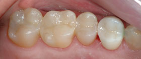 Vancouver Island Tooth Colored Composite Fillings